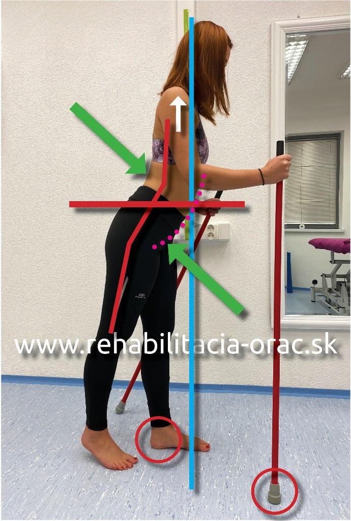 Nordic walking rehabilitacia orac fyzioterapia