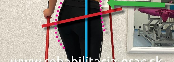 Nordic walking nespravne drzanie tela Tanecnica rehabilitacia Orac fyzioterapia