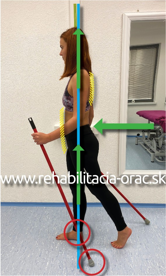 Nordic walking rehabilitacia Orac