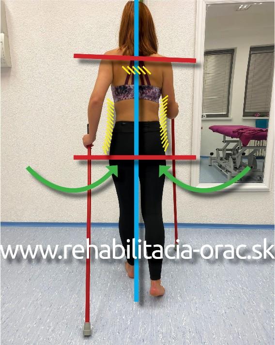 Nordic walking rehabilitacia orac